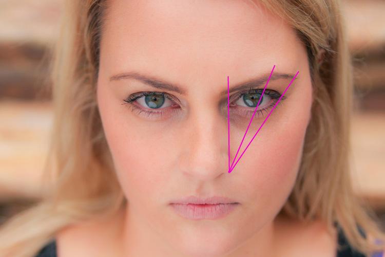 Eyebrow lines